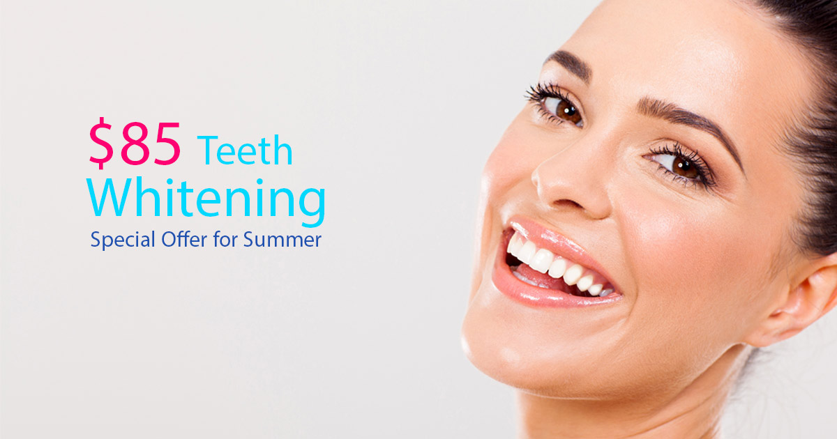 Teeth Whitening Houston Sugar Land