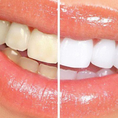 In Home vs Dental Office Teeth Whitening in Houston