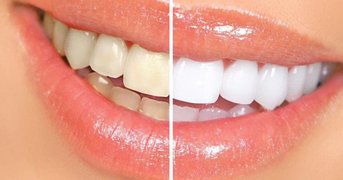 FreeBleachingKit-Westwood-Dental
